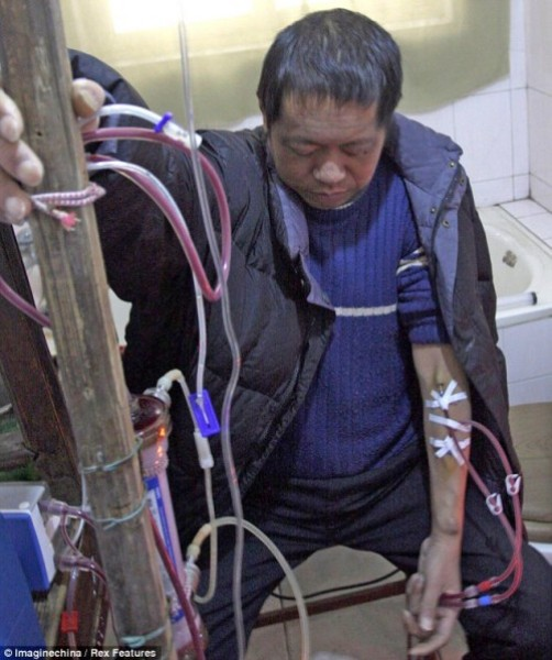 how much does a kidney dialysis machine cost